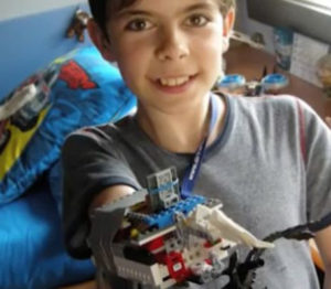 Une prothèse en LEGO